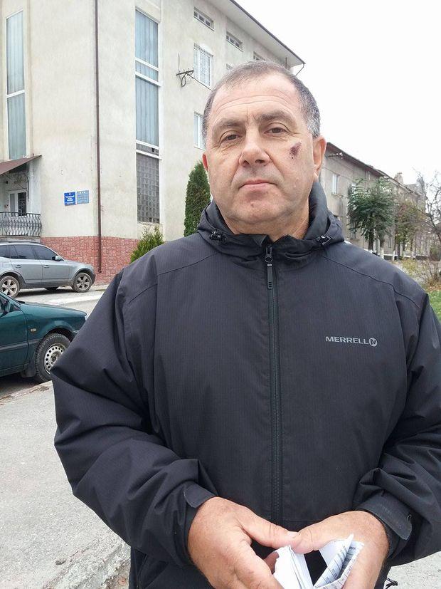 Підприємець із Чорткова каже, що його побив нардеп Олег Барна