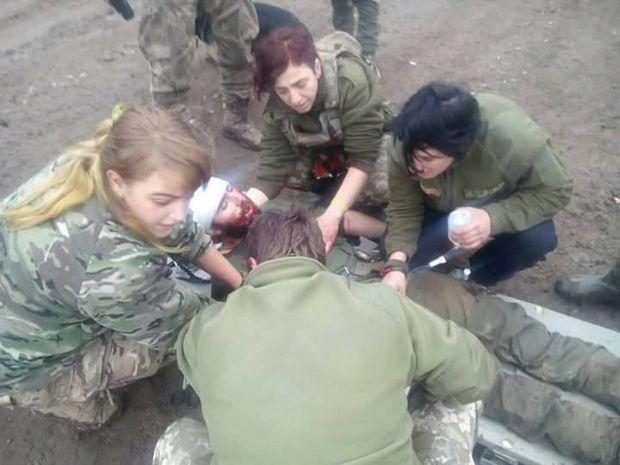На Донбасі важко поранили добровольця АТО у голову