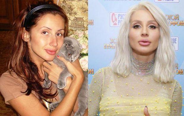 Світлана Лобода до і після пластичної хірургії