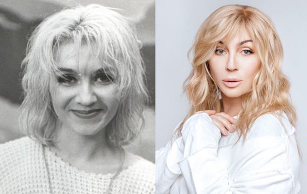 Ірина Білик до і після пластичної хірургії