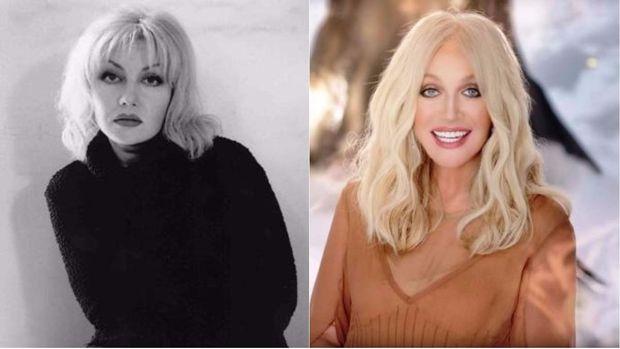 Таїсія Повалій до і після пластичної хірургії