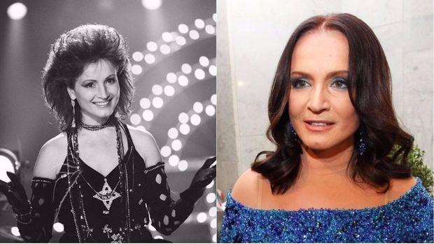 Софія Ротару до і після пластичної хірургії