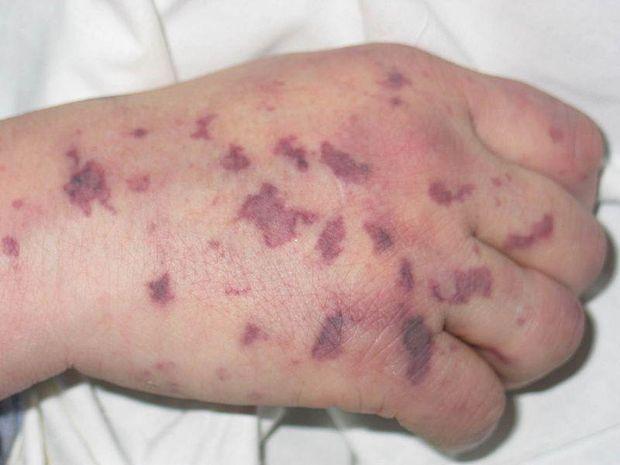 Мінінгококова інфекція симпоми