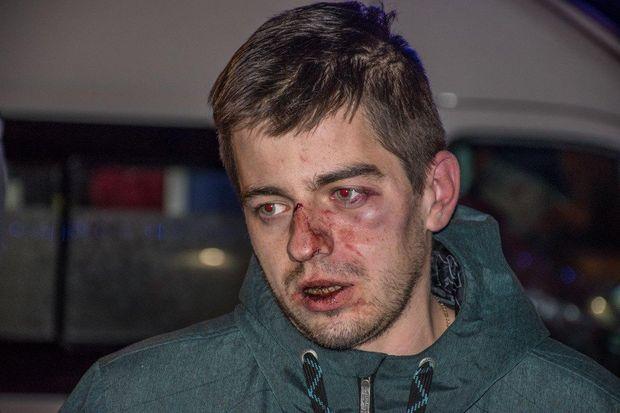 Київ, піцерія, бійка, Кримінал