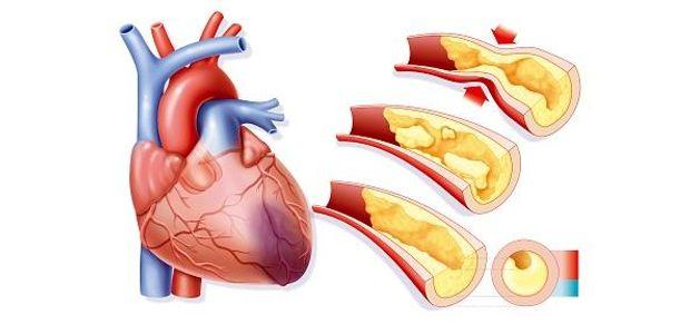 Виникнення інфаркту